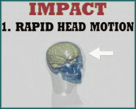 Rapid Head Motion - Head Impact Biomechanics