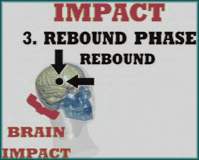 Rebound Phase - Head Impact Biomechanics