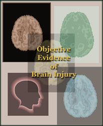 Objective Evidence Footprints of Concussion