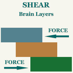 Shear between layers of the brain