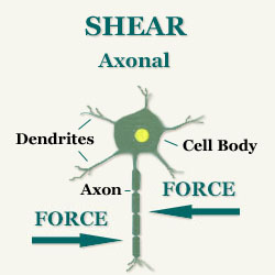 Brain Injury Shearing - Axonal shearing